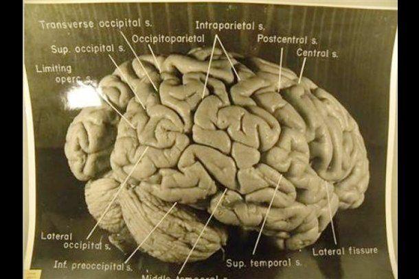 Revelan que el cerebro de Einstein era inusual