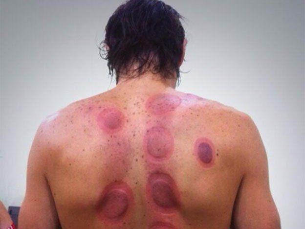 Cuento chino: Schiavi sufrió con un método para aliviar dolores de espalda
