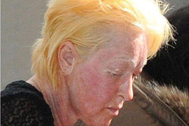 ¿Qué le pasó al rostro de Cindy Lauper?