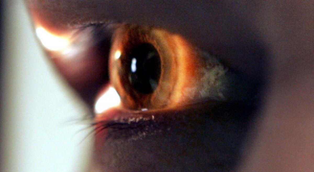 Logran restaurar la vista de una persona ciega con una nueva terapia genética