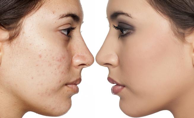 Los maquillajes que tenés que evitar si sufrís con el acné