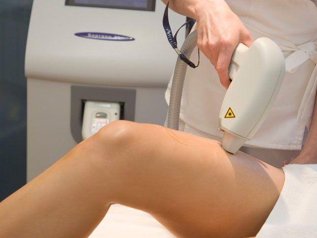 Conoce más sobre la depilación láser