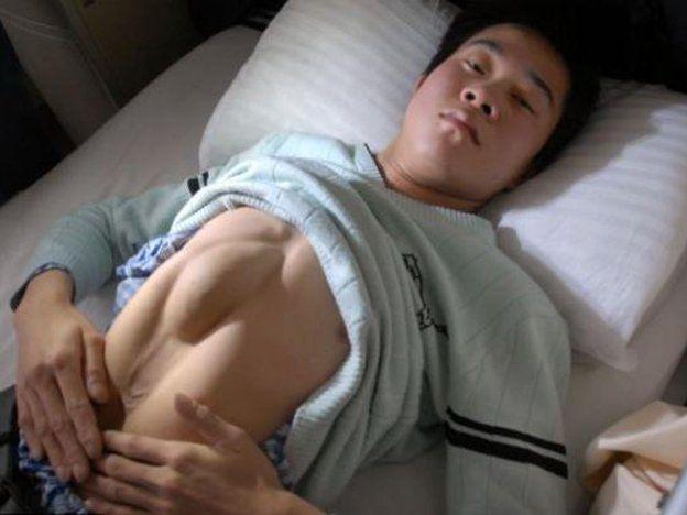 Un joven tiene el corazón en el abdomen y hace 17 años sobrevive