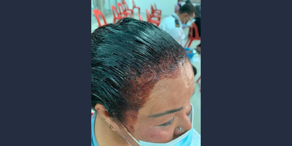 La mujer no terminó de teñirse el pelo y fue a vacunarse.