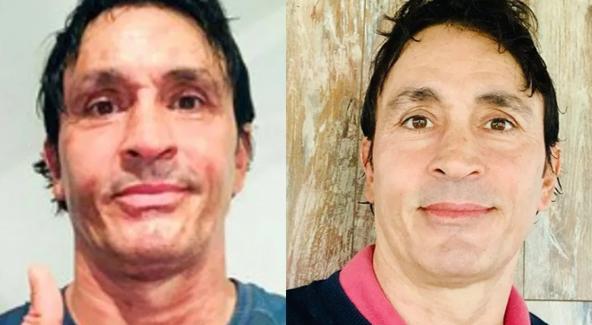 Sebastián Estevanez mostró la mejora que tuvo su piel tras quemarse la cara