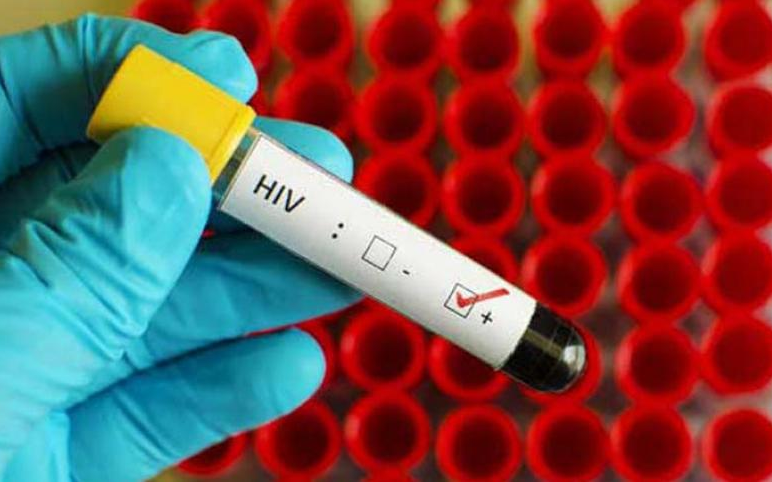 Un científico cree haber hallado al paciente cero del VIH