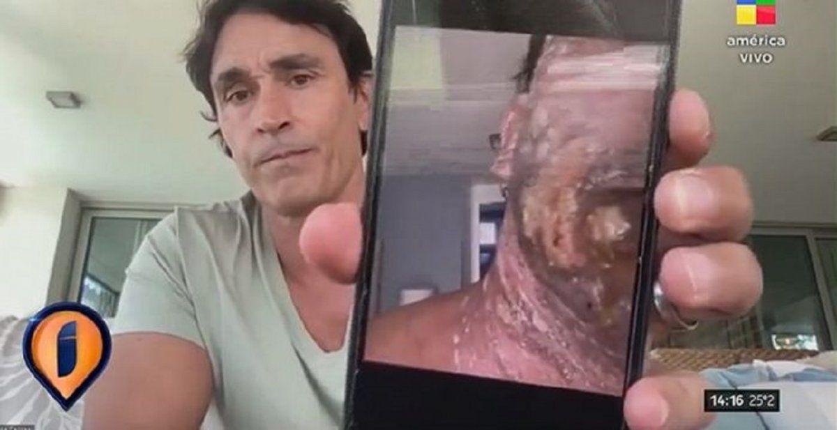 Reapareció Sebastián Estevanez tras quemarse en la cara
