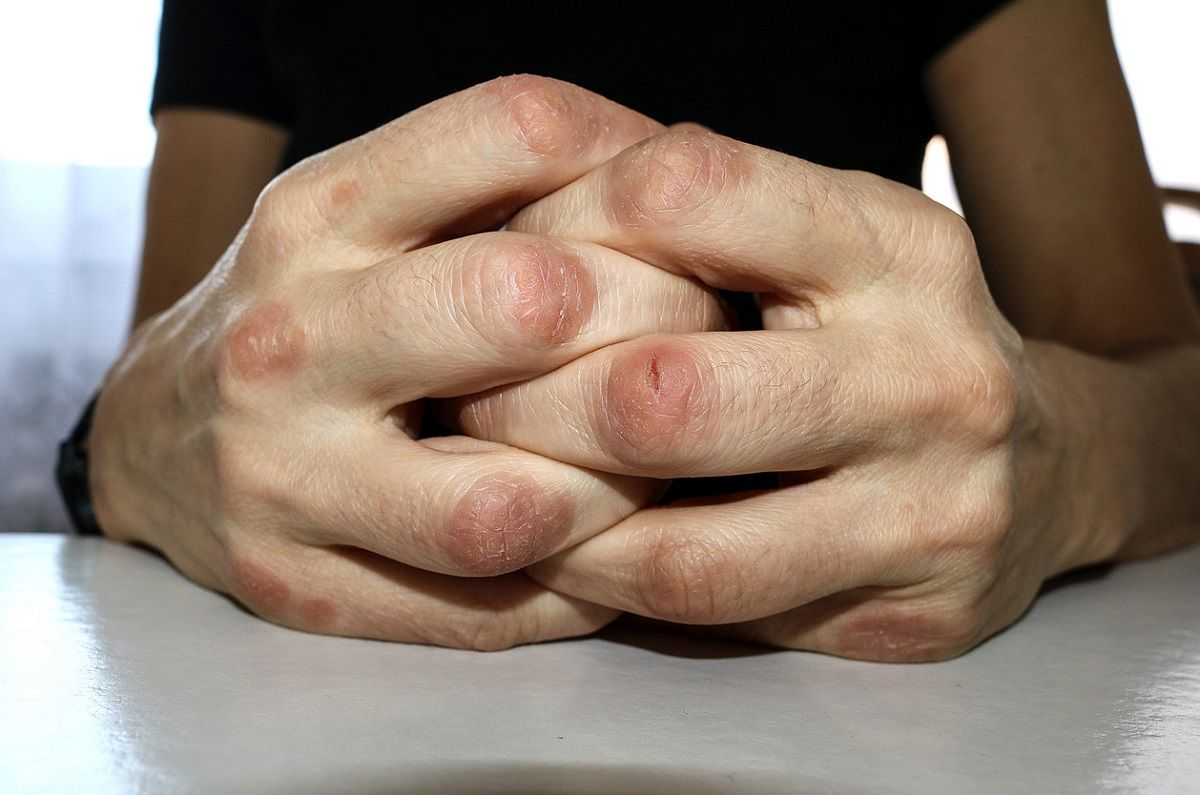 Del 13 al 24 de septiembre se realizará una campaña para detectar casos de artritis psoriásica.