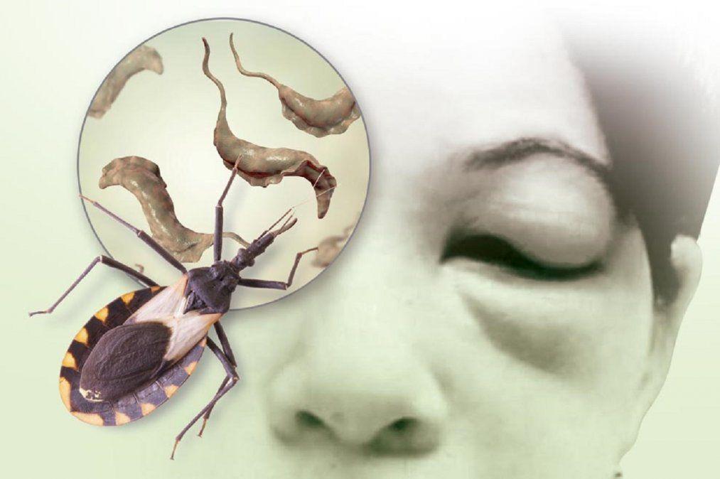 En San Juan, hasta un 3% de las embarazadas sufren de Chagas
