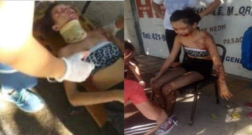 Un motociclista atropelló a una nena y la dejó tirada en la calle