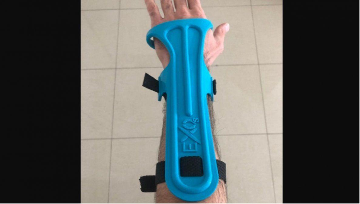 Entregaron prótesis modeladas con tecnologías 3D