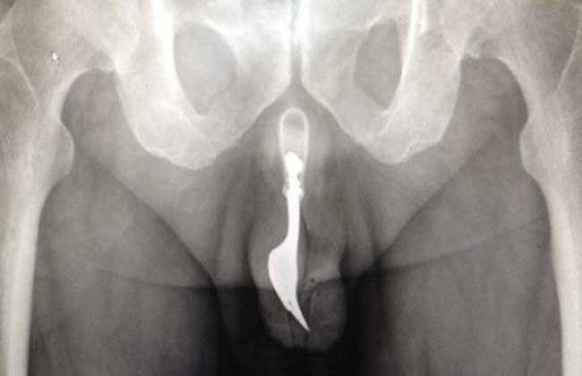 Insólito: un anciano se incrustó un tenedor en el pene para sentir placer