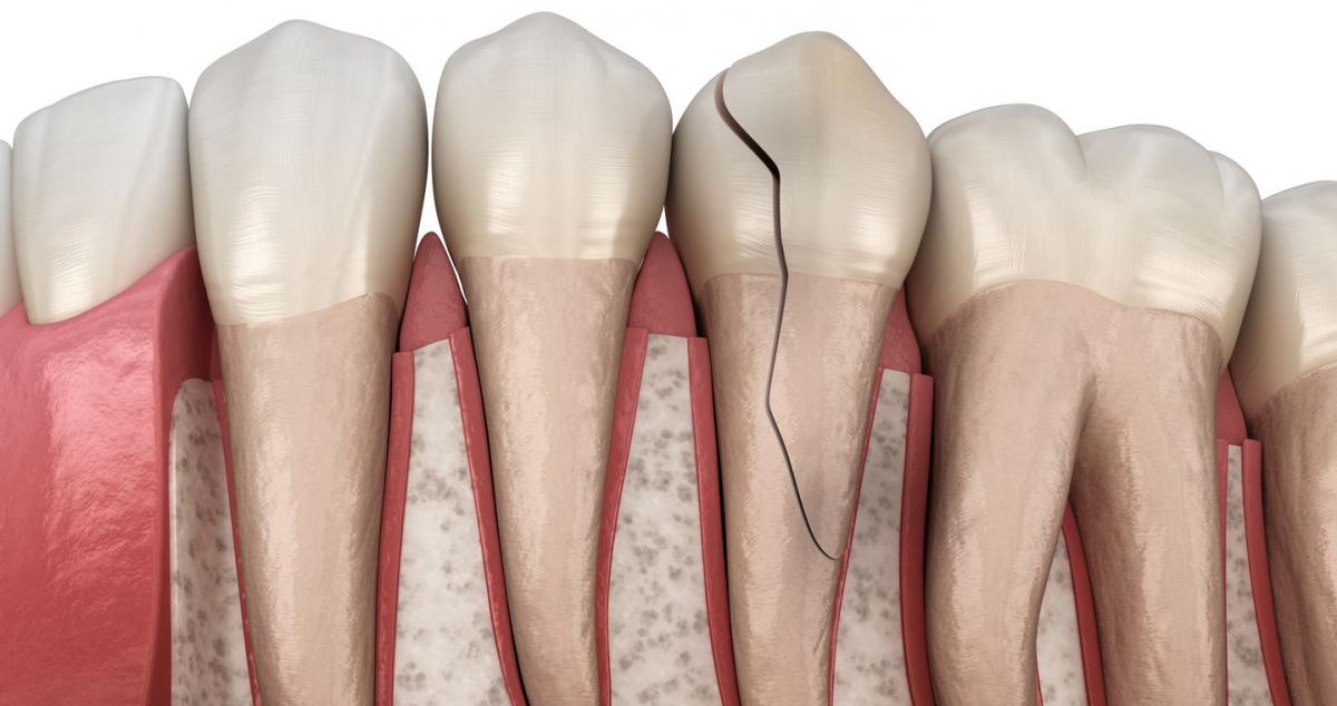 El estrés de la pandemia triplicó los casos de fracturas dentarias